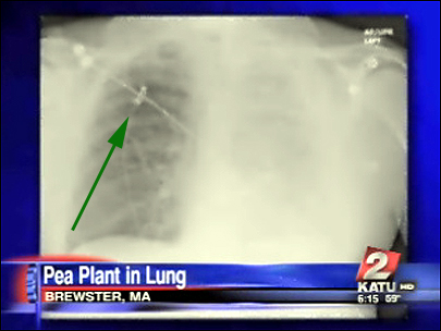 Pea_plant_in-lungs