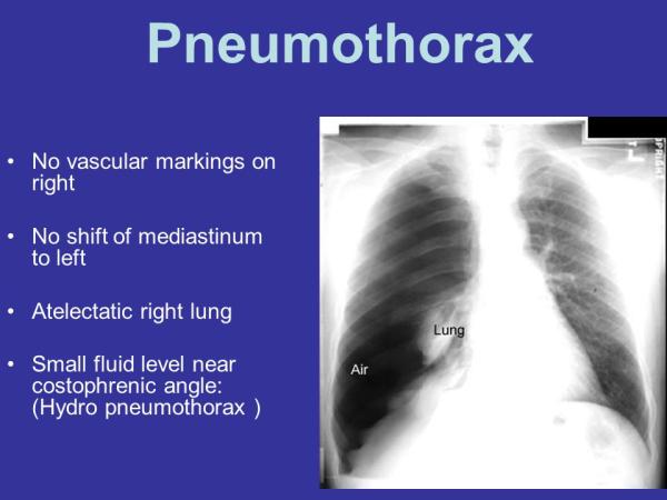 Pneumothorax+No+vascular+markings+on+right