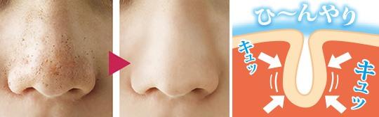Nose-pore-blocker-cap-hanabijin-2