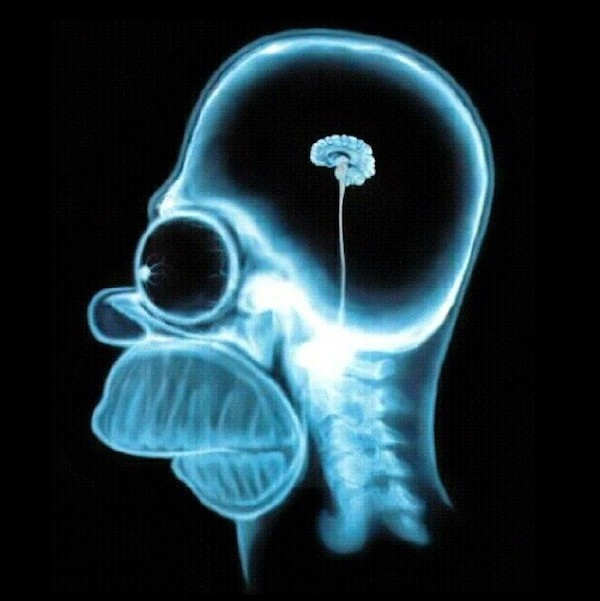 Homer-simpson-brain-x-ray-i11